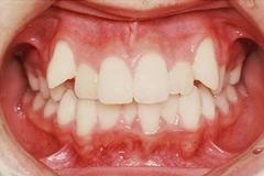 叢生・乱杭歯・八重歯など