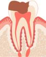 歯髄が細菌に感染した歯の状態