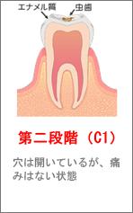 第二段階(C1)