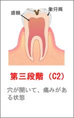 第三段階(C2)