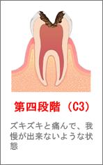 第四段階(C3)